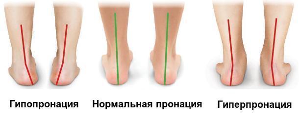 Подробная инструкция по выбору спортивной обуви для бега – фото (9)