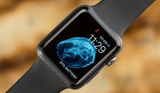 Как выбрать смарт-часы особенности, советы, нюансы – Apple Watch Series 2 вид