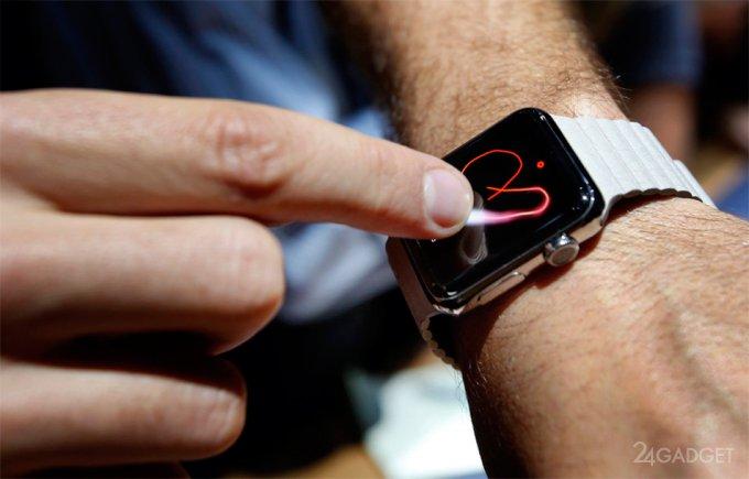 Apple Watch reveal abnormal heart rhythm with 97% accuracy (2 photos)