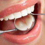 18316 Created a vaccine against dental caries